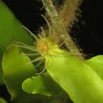 bunodeopsis strumosa 16 150x150 Anemone bunodeopsis
